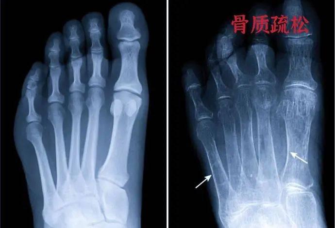 50多岁的女性浑身窜着疼,根源很可能是更年期骨质疏松,却不知自