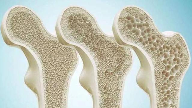 吃什么东西能补钙?真正补钙的4种食物